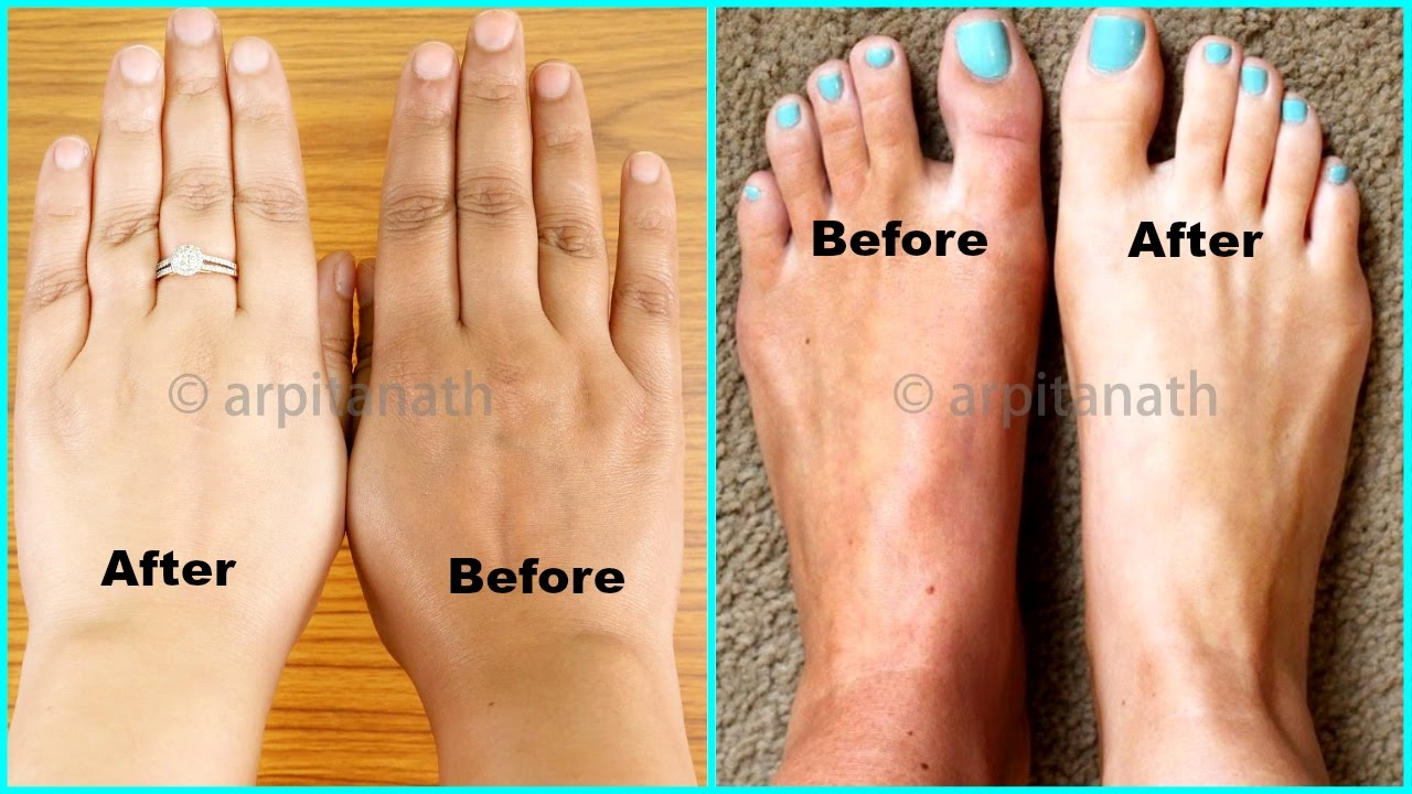 Miracle Instant Way To Get 100% EFFECTIVE Hands & Feet Whitening Remedy