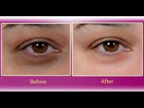Top 2 Beauty Tips For Dark Circles Under Eyed (No More Dark Circles and Puffy Eye )Secrets Tips
